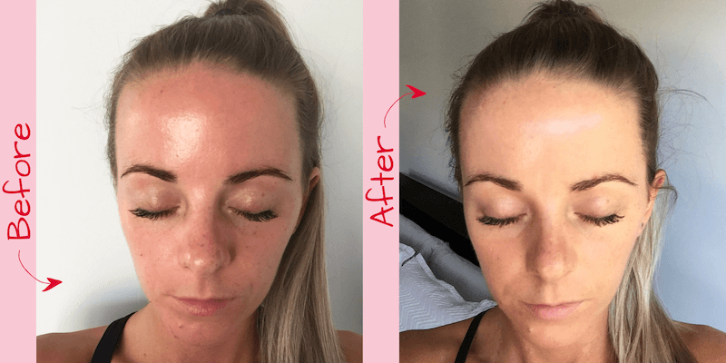 Sally had been suffering from redness, bumpy skin and sore red pimples for months.   After three weeks using the 'Just Face It' serum her pimples have cleared up, her skin is noticeably more smooth and her complexion has completely evened out.